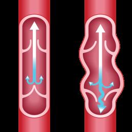 Blood circulation schema