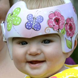 Baby wearing medical helmet with drawings of flowers and butterflies