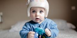 /syndrome-bébé-tete-plate-casque-plagiocéphalie/